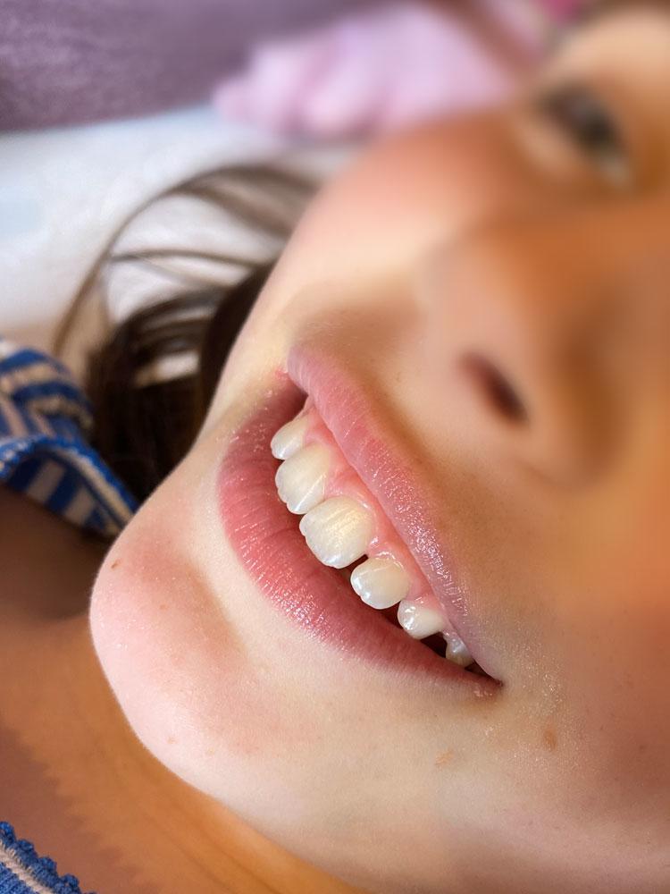 Zahnreinigung Kinder nachher