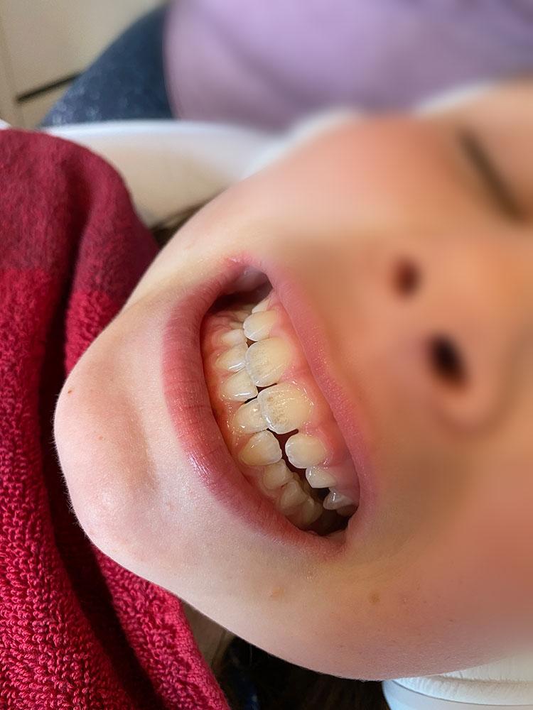 Zahnreinigung Kinder vorher