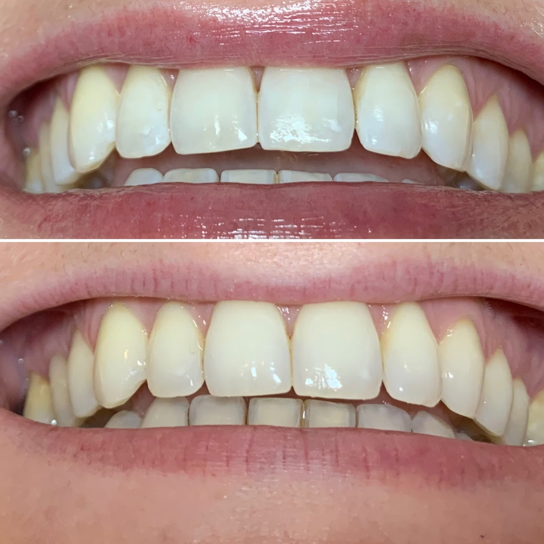 Vorher nachher Zahnrein